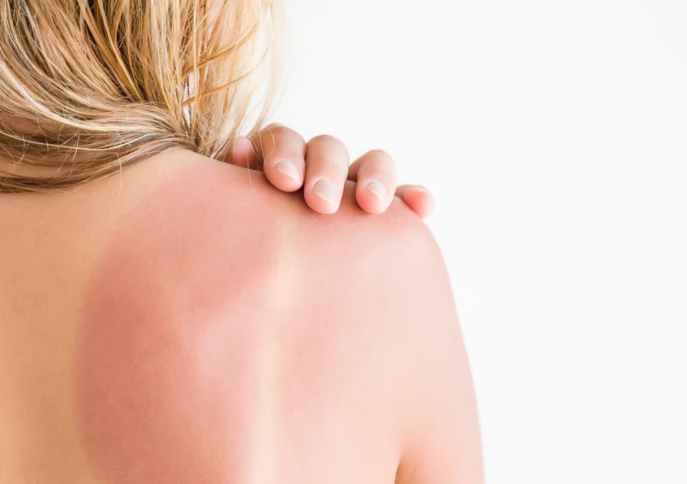 אישה עם כוויה בגבה מהשמש