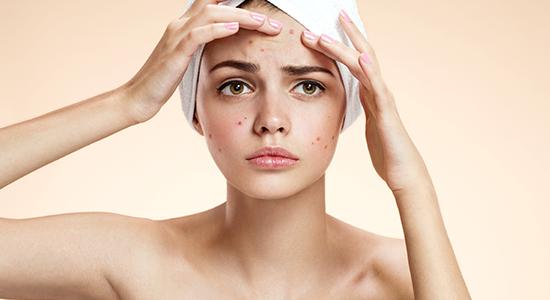 אקנה היא אחד המצבים העוריים השכיחים ביותר, בעיקר בגיל ההתבגרות. ממה היא נגרמת ומהן הדרכים היעילות ביותר לטפל בה?