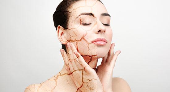 יובש בעור הפנים והגוף