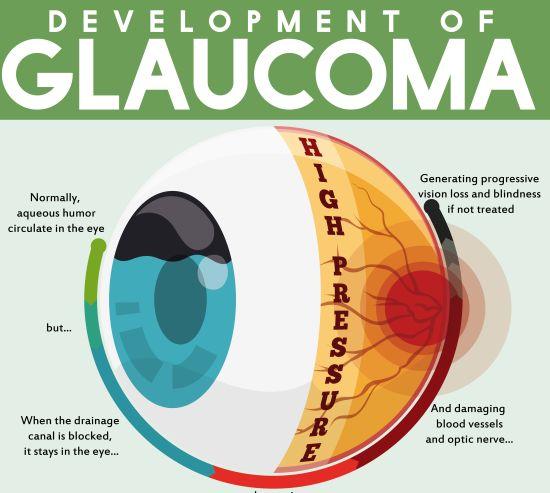 גלאוקומה - מחלה נפוצה למדי, ללא תסמינים בשלבים המוקדמים