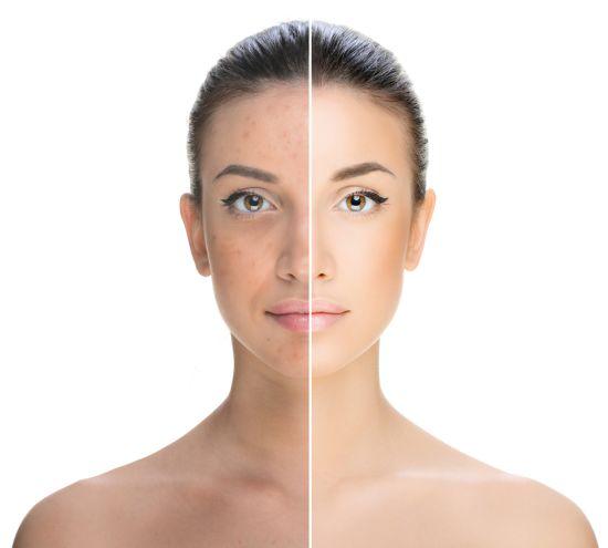 דרמו קומסטיקה- השיטה המדעית להלחם בהשפעות הסביבה על עורנו