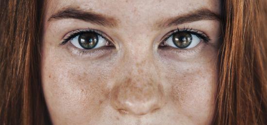 פיגמנטציה בעור- עלולה להוון סמן לנזק ממשי בהפרשת המלנין בתאי העור