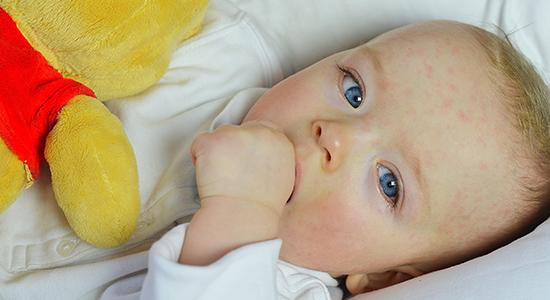 עורו העדין של התינוק נוטה לסבול מפריחות, במיוחד בחודשי חייו הראשונים. אילו סוגי פריחות נפוצים ומתי כדאי לפנות לרופא?