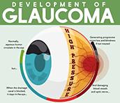 זה הזמן לבדוק את הראייה - אלו התופעות והמחלות העלולות להופיע אחרי גיל